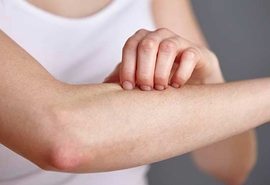 Photo showing itchy hand, showing bee Propolis Cream Treats Inflammation